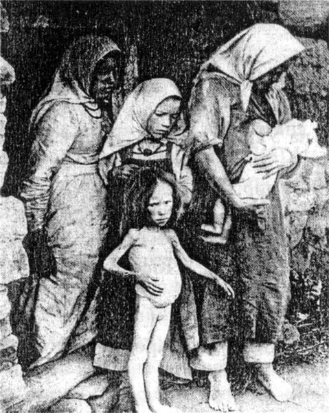 Las marcas visibles del hambre